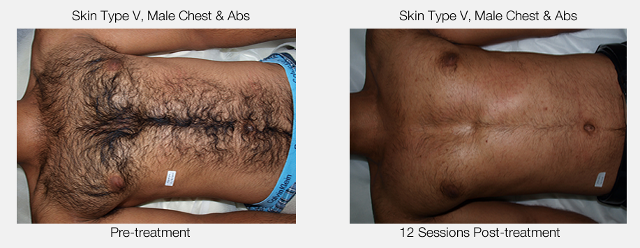 Male Chest & Abs Hair Removal Results