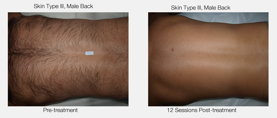 Male Full Back Hair Removal Results