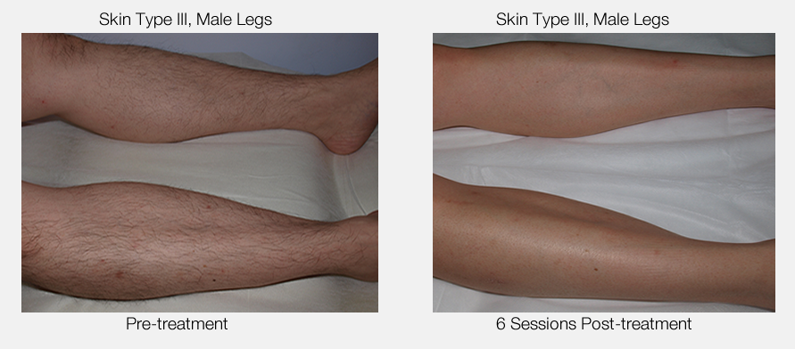 Permanent Hair Removal Results for Male Legs