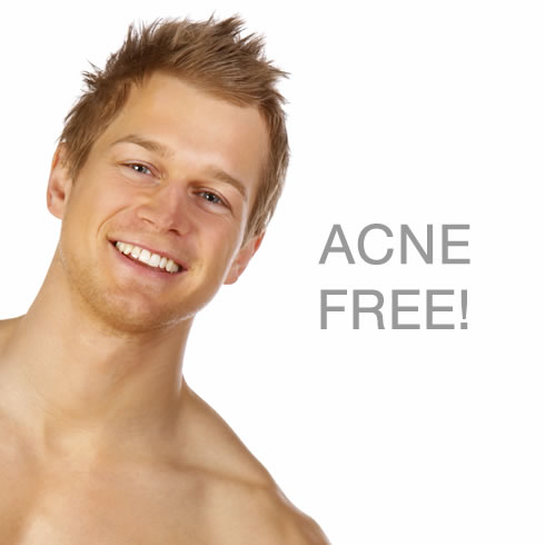 Chemical Peels for Acne, Acne Scars, Fine Lines, Wrinkles, Dull and tired skin